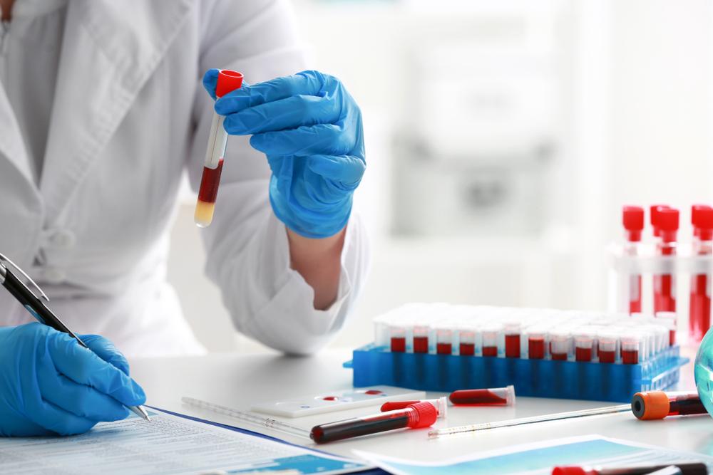 Среды для диагностики кишечных инфекций